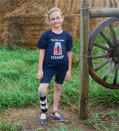 Champ Neveah wearing her artificial leg standing in front of bales of hay on a farm.
