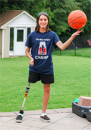 Champ Rebecca, a leg amputee, spinning a basketball with her finger.