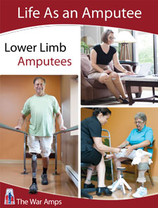 Life As an Amputee: Lower Limb Amputees